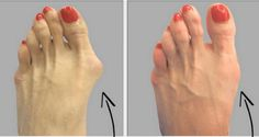 Bunions are salt deposits, but angina, influenza, gout, bad metabolism, rheumatic infections, poor diet and long wearing uncomfortable shoes also contribute to their formation.