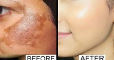 Acne Eliminate Your Acne - Home remedy that will remove hyper pigmentation and acne scars from your face Free Presentation Reveals 1 Unusual Tip to Eliminate Your Acne Forever and Gain Beautiful Clear Skin In Days - Guaranteed! Home Remedies For Acne, Acne Remedies, Natural Remedies, Acne Treatment, Skin Treatments, Prévenir Les Rides, Clear Skin Overnight, Brown Spots On Face, Life Hacks