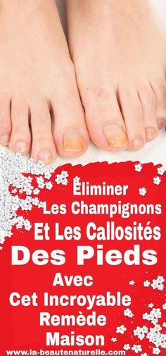 Éliminer les champignons et les callosités des pieds avec cet incroyable remède maison #champignons #callosités #pieds