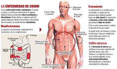 La enfermad del Crohn