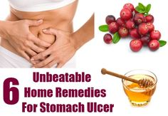Stomach ulcer or peptic ulcer is a painful health problem faced by millions of people around the globe. Stomach ulcer refers to the disease which creates sores or little holes in the gastrointestinal track which leads to several ailments as excess pain in the stomach, abdomen, poor digestive system, gas, vomiting, hunger, nausea, weakness, constipation, traces of blood in the stool, aneamia, loss of weight, excess thirst etc. If we talk about the main reason behind the disease it has been…