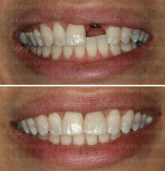 Teeth Implants, Dental Implants, Dental Photos, Front Teeth