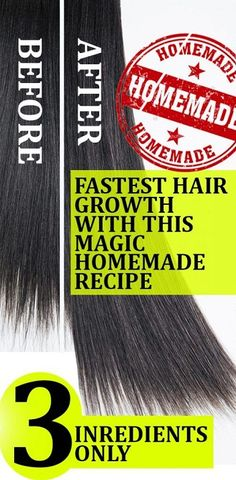 The Secret Homemade Formula For Fastest Hair Growth! 3 Ingredients Just… - Buzzhome World - The Miracle Homemade Recipe For Fastest Hair Growth! 3 Ingredients Only… – Buzzhome World - Hair Remedies For Growth, Hair Growth Treatment, Hair Growth Tips, Hair Loss Remedies, Natural Hair Growth, Natural Hair Styles, Long Hair Styles, Hair Growth Progress, Extreme Hair Growth