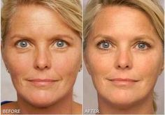 Anti Aging Remedies Learn how to make a homemade anti-aging cream with miraculous effect. - Learn how to make a homemade anti-aging cream with miraculous effect. Anti Aging Tips, Best Anti Aging, Anti Aging Cream, Anti Aging Skin Care, Best Acne Scar Removal, Oils For Skin, Skin Cream, Organic Skin Care, Skin Care Tips