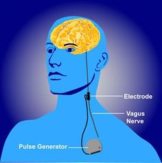 Vagus nerve stimulation improves recovery after stroke