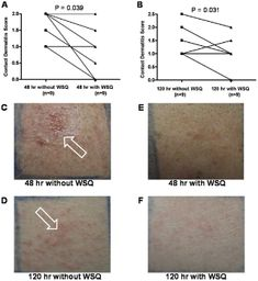 Quercetin Is More Effective than Cromolyn in Blocking Human Mast Cell Cytokine Release and Inhibits Contact Dermatitis and Photosensitivity in Humans Substance P, Sensory Nerves, Mast Cell Activation Syndrome, Contact Dermatitis, Biomedical Science, Drug Discovery, Autoimmune Disease, Invisible Illness
