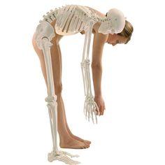 Huesos sanos para tener un cerebro sano