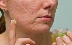 DIY Best Essential Oils for Scars Treatment that Work Fast Beauty Tips For Face, Beauty Skin, Face Beauty, Lemon Juice Face, Oils For Scars, Face Mask For Pores, Scar Removal Cream, Pore Mask, Baby Acne