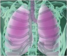 Targeted Drug Delivery to Alleviate Pulmonary Inflammation: Penn Researchers