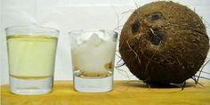 El Aceite de Coco para la Cocina y la Salud - econutrición. Leelo aquí: http://www.suplments.com/econutricion/el-aceite-de-coco-para-la-cocina-y-la-salud/