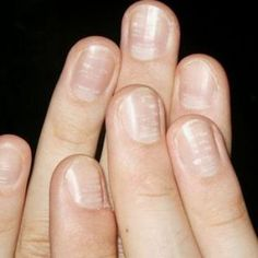 What nails tell us: White spots on nails can be due to zinc deficiency. Fine lines under the nails, near the tip, are caused by vitamin C deficiency. A shortage of vitamin D can lead to soft, peeling or brittle nails.