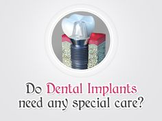 Once the Dental Implants are in place, they will serve you well for many years if you take care of them and maintain good oral hygiene.