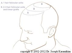 Hair Transplant Zones - Follicular Unit Hair Transplant (FU) , Neograft