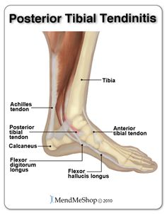 "If you have posterior tibial #tendonitis you'll feel pain on the inner side of your foot. With this condition most pain is felt during the ""push off"" motion done with walking. #posteriortibialtendonitis"