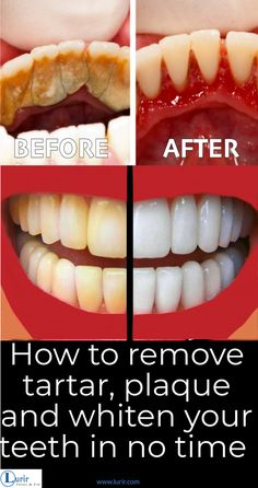 How to remove tartar, plaque and whiten your yellow teeth in few steps! – Lurir How to remove tartar, plaque and whiten your yellow teeth in few steps! – Lurir How to remove tartar, plaque and whiten your yellow teeth in few steps! Teeth Health, Healthy Teeth, Oral Health, Dental Health, Dental Care, Health Care, Gum Health, Healthy Life, Leaky Gut