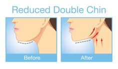 Fix Your Double Chin With These Effective Exercises via @Mamabeeblog