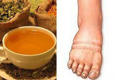 ¿Sueles padecer retención de líquidos? ¿Se te hinchan las piernas y notas mucha pesadez? ¡Prueba estas infusiones naturales!