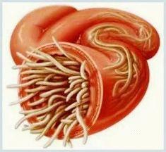 Health Options, Medical, Vegetables, Ethnic Recipes, Food, Medicine, Essen, Vegetable Recipes, Meals
