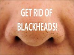 HOW TO GET RID OF BLACKHEADS! DIY BLACKHEAD TREATMENT! another way to Get rid of Blackheads: Take gel facial wash and mix with a tbsp of baking soda  a tbsp of salt. Apply to damp skin with cotton pad; leave for 5 mins.