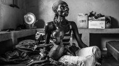 """Bei den zeitgenössischen Themen belegt Corentin Fohlen aus Frankreich mit der Serie """"Une Crise Humanitäre"""" den zweiten Platz"""