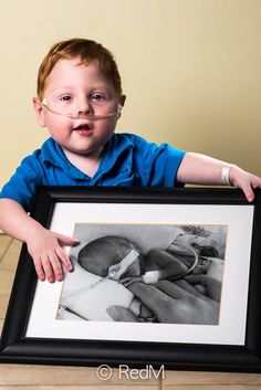Pin for Later: These Then-and-Now Photos of Premature Babies Prove How Resilient Preemies Really Are Charles, born at 26 weeks
