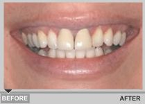 Restore broken or damaged teeth with a dental crown from the best dentist in Dublin. Take the first steps to regaining confidence in your smile.