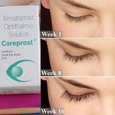 Careprost Before And After Buy Now Longer Eyelashes Careprost Eyelashes