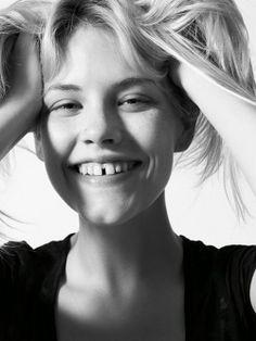 ¿Se corrigen los dientes separados? Si hay un #diastema o un único espacio entre los dientes centrales es mejor corregir con composite.  Si los diastemas o espacios son múltiples es más conveniente hacerlo con carillas de porcelana.