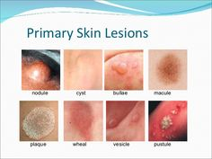Types Of Acne, Skin Spots, Pediatric Nursing, Wound Care, Medical Facts, Medical Assistant, Photo Makeup, Dental Hygiene, Nurse Practitioner