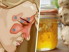 Mit nur zwei Zutaten kannst du dir ein Naturheilmittel selbst herstellen, das die Heilung von Sinusitis unterstützt und die Erkrankung verhindern kann.