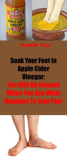 Soak Your Feet In Apple Cider Vinegar: You Will Be Amazed When You See What Happens To Your Feet