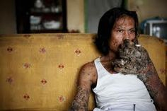 Dede Koswara smokes as he poses for a photographer in his home village on December 15, 2009 in Bandung, Java, Indonesia. Due to a rare genetic problem with Dede?s immune system he has been unable to fight the HPV infection or Human Papilloma Virus causing his body to produce tree like warts mostly on his arms and legs. Dede?s family including his two children have supported him while he has suffered with the debilitating virus.
