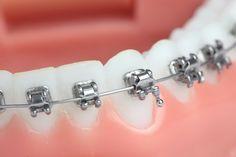 TRATAMENTO ORTODÔNTICO MAIS CONFORTÁVEL: APARELHOS AUTOLIGADOS ~ Ortodontia em Brasília
