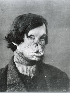 Photo from 1895 of leprosy patient. Learn about the disease & leper colonies Old Photos, Vintage Photos, Human Oddities, Creepy Photos, Vintage Medical, Foto Art, Medical History, Human Condition, Medical Conditions