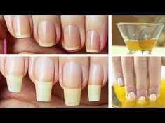 nail growth tips faster \ nail growth tips faster Grow Long Nails, Grow Nails Faster, How To Grow Nails, Nail Growth Tips, Safe Nail Polish, Nail Problems, Beauty Hacks Nails, Manicure And Pedicure, Nail Tips