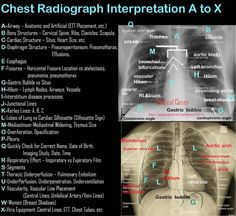 How to read a Chest Xray - Mnemonic