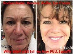 This is NOT a mother/daughter photo!  THIS is Deb Adkins' BEFORE/AFTER using our REDEFINE regimen, our AMP MD ROLLER and our Multi Function EYE CREAM.  Deb is a REAL PERSON on my R+F team!!!  CHECK OUT HER RESULTS!!