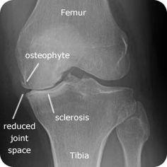 Osteoarthritis Grading: Limitations of X-rays Arthritis relief naturally with Dr. Brad's liquid FlexEasy supplement Arthritis relief naturally with Dr. Yoga For Arthritis, Juvenile Arthritis, Natural Remedies For Arthritis, Rheumatoid Arthritis Treatment, Arthritis Relief, Types Of Arthritis, Pain Relief, Reactive Arthritis