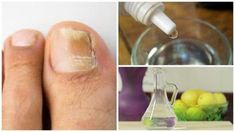 Nail fungus, an infection also known as onychomycosis, is caused by . Psoriasis Remedies, Snoring Remedies, Home Remedies, Psoriasis Cure, Natural Nail Fungus Treatment, Essential Oils For Psoriasis, Psoriasis On Face, Plaque Psoriasis, Natural Solutions