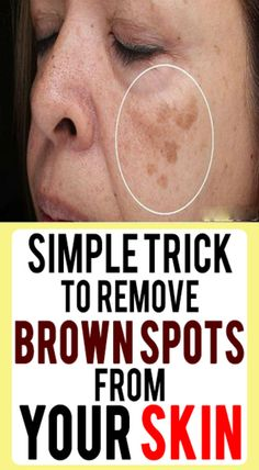 Simple Trick To Remove Brown Spots From Your Skin Brown Spots! This is one more common problems usually face by many people especially women these days These unsightly spots will lower our self con is part of Brown spots on face - Black Spots On Face, Brown Spots On Skin, Dark Spots, Facial Brown Spots, Age Spots On Face, How To Get Rid, How To Remove, Get Rid Of Spots, Age Spot Removal