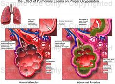 Alveoli Pulmonary Edema Pulmonary Edema, Case Presentation, Visual Learning, Nclex, Teaching Materials, Ems, Health And Wellness, Nursing, Medical