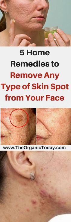 5 Home Remedies for wrinkle removal