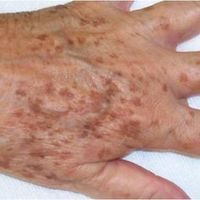 What to do about liver spots (age spots) - Hautbehandlung Age Spot Remedies, Natural Remedies, Age Spot Treatment, Liver Spot, Age Spots On Face, Age Spot Removal, Skin Problems, Health Problems, Skin Care Regimen