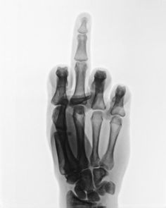 It's always fun to tell a patient to flip you off