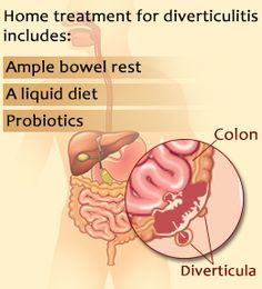 Tips to treat diverticulitis naturally