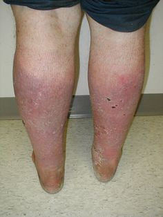 The potential severity of venous insufficiency lies in the complications that can result, such as dermatitis, ulcers, chronic linfeflebedema, repeat thrombosis, and infections of the skin and subcutaneous tissue as common in patients with this disease. CVI is often underdiagnosed.
