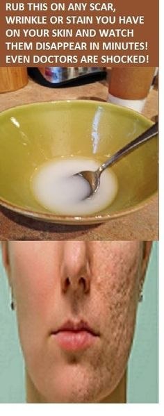 Rub this on any scar, wrinkle or stain you have on your skin and watch them disappear in minutes. The main ingredient of this incredible solution is honey, a sweet natural nectar produced by bees w… Beauty Care, Diy Beauty, Beauty Skin, Beauty Hacks, Beauty Box, Beauty Ideas, Beauty Makeup, Skin Tips, Skin Care Tips