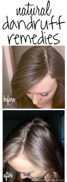 Dealing with dandruff #hair #remedies