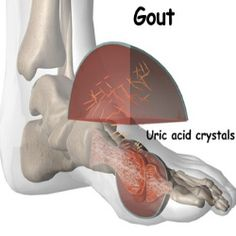 gout attack : high level of uric acid can cause severe pain in toes . suspect foods :fish lentiles, mushroom, (high protein) watch out