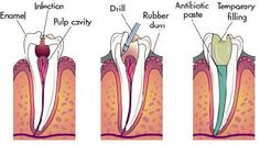 Sedation dentistry dental cavity,how successful is root canal treatment how to stop tooth decay from spreading,dental services definition what can i use for swollen gums. Dental Humor, Dental Hygiene, Dental Health, Oral Health, Health Tips, Dental Group, Dental Art, Dental Life, Dentistry Education
